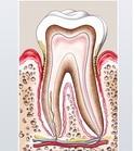 Parodontitis.Parodontose.