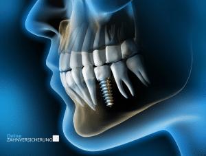 Warum sind Zahnimplantate so teuer