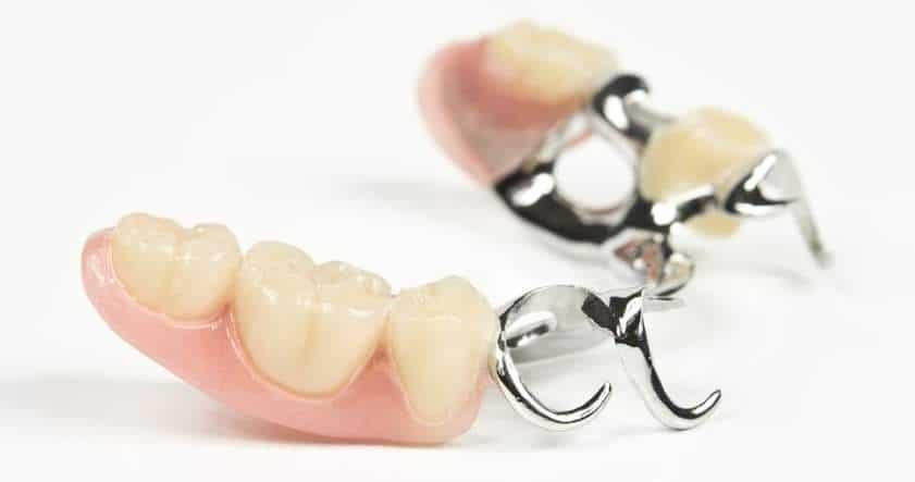 Kosten Zahnbrücke