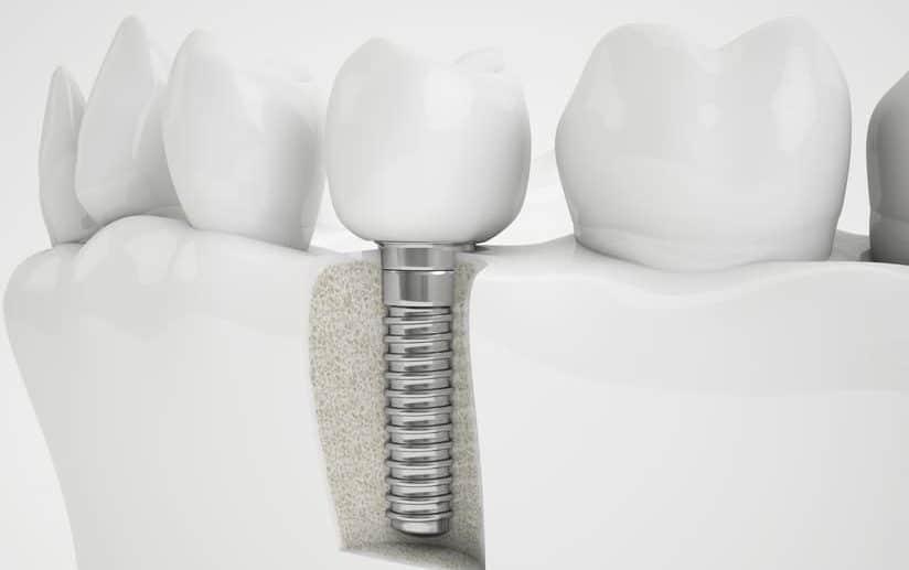 CHECK24 Zahnzusatzversicherung