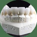 Zahnersatz bis 80%