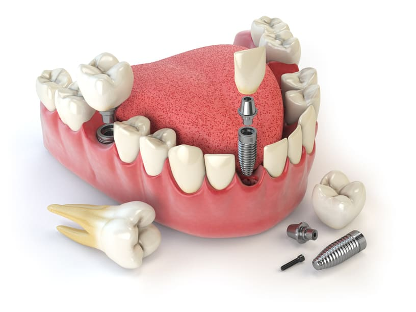 Was bezahlt Ihre Krankenkasse bei Zahnersatz?